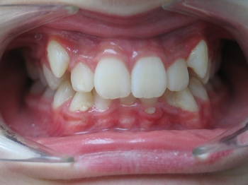 Cas clinique au cabinet de soins d'Orthodontie du Dr Frédéric LALOUX à Amiens